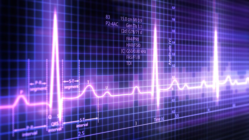 ECG traces on a screen